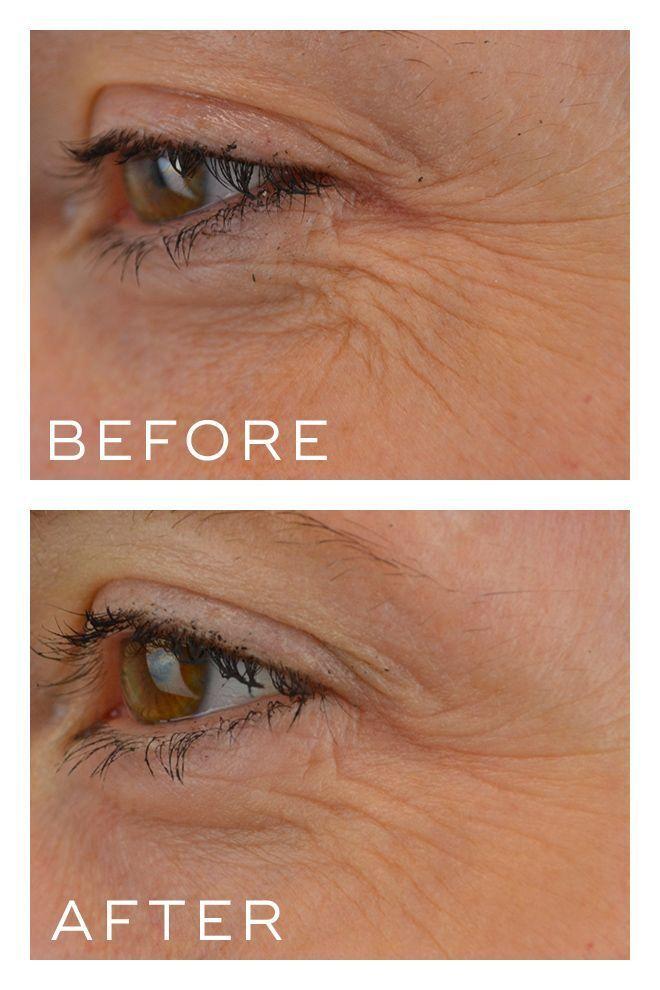 Crystal Retinal 10 - Before & After photos